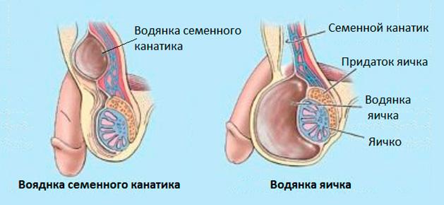 vodyanka-semennogo-kanatika